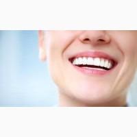 Эффективное отбеливание зубов с помощью системы Beyond Polus