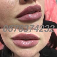Увеличение губ, увеличение скул, заполнение морщин, биоревитализация