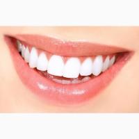 Безопасное отбеливание зубов Киев. Отбеливание зубов системой Beyond Polus