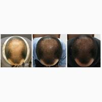 Ускорение роста волос, методом мезотерапии-спасение для ваших волос