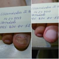 Медицинский аппаратный педикюр, лечение трещин, Харьков