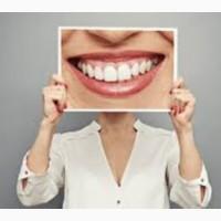 Новинка от «Дентал Верди» - Цифровой дизайн улыбки